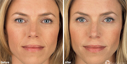 Juvederm Los Angeles