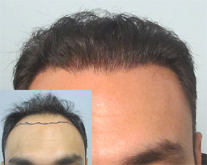 Los Angeles Strip Hair Transplant