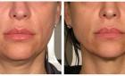 Ulthera By Board Certified Dermatologist