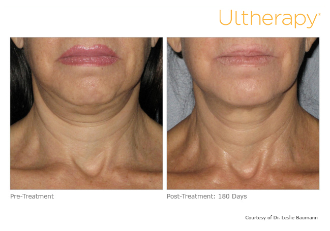 ultherapy-0008-0086w_before-180daysafter_neck