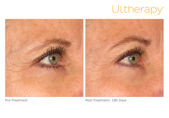 ultherapy-0008mmr_before-180daysafter_brow
