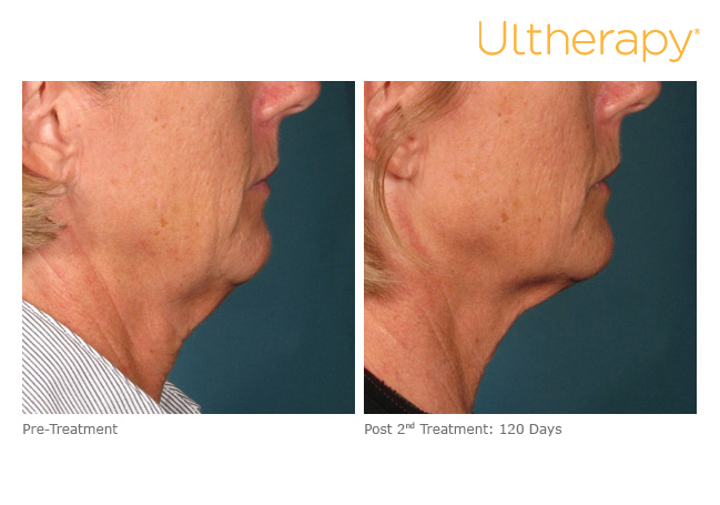 ultherapy-000l-005y_before-120daysafter-2tx_lower