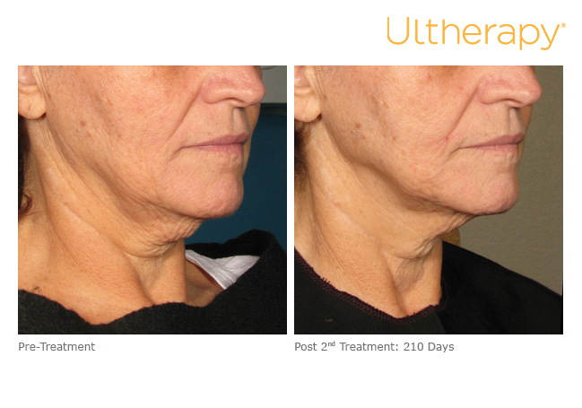 ultherapy-000l-008y_before-210daysafter-2tx_lower