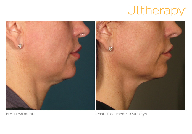 ultherapy-000p-015y_before-360daysafter_lower