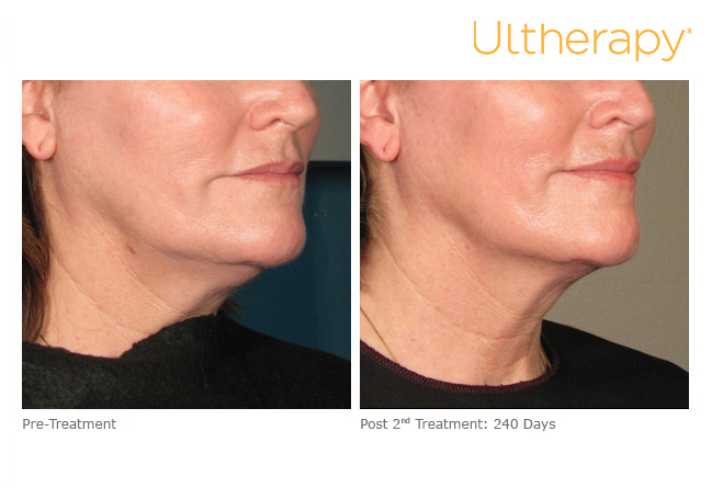 ultherapy-000p-028y_before-240daysafter_2tx_lower