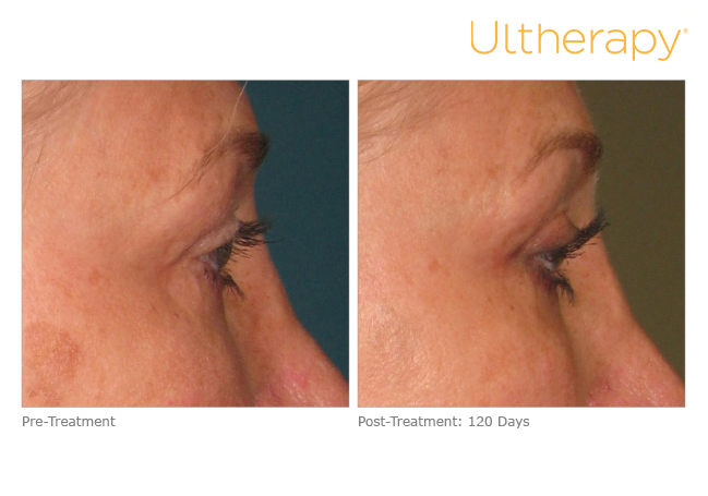 ultherapy-000p-033y_before-120daysafter_brow