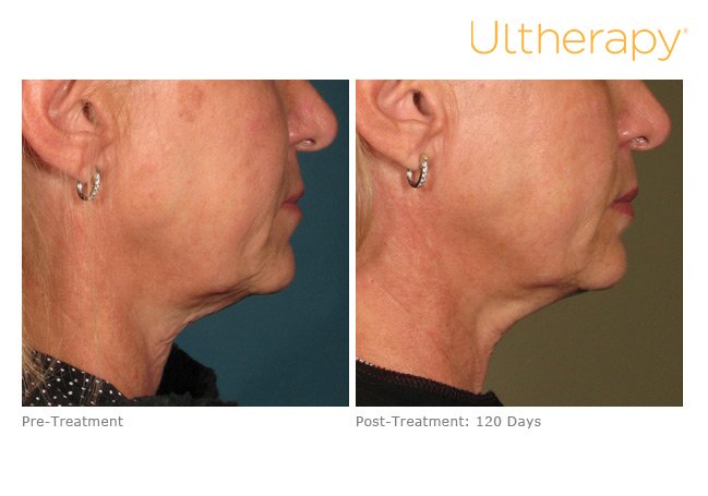 ultherapy-000p-033y_before-120daysafter_lower