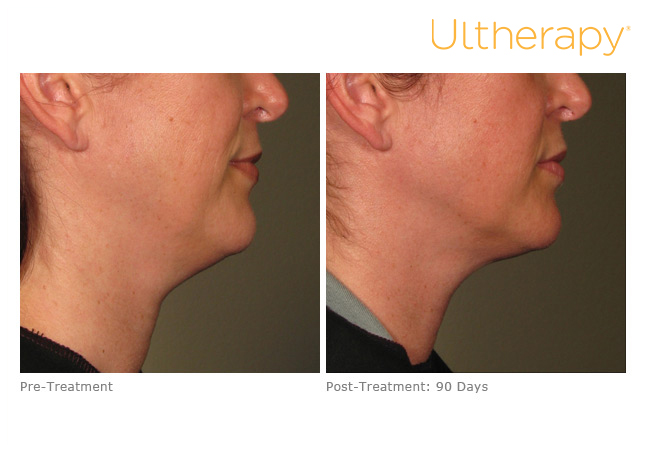 ultherapy-000p-042y_before-90daysafter_lower