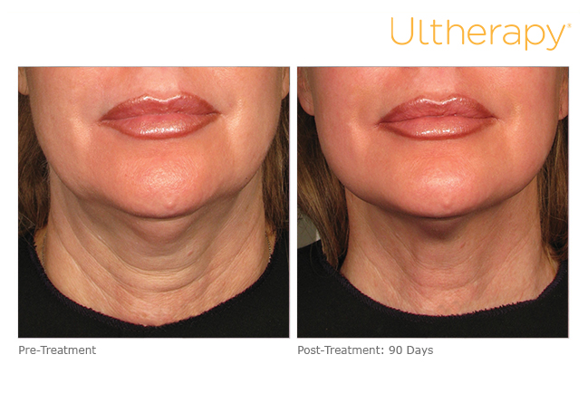 ultherapy-000p-044y_before-90daysafter_lower