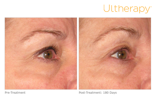 ultherapy-0013dlh_before-180daysafter_brow