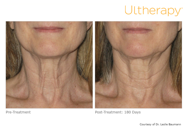 ultherapy-0028-0086w_before-180daysafter_neck