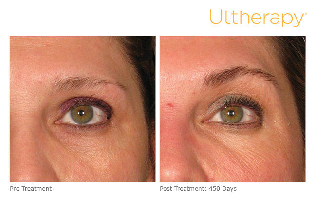 ultherapy-0030j-m_before-450daysafter_brow