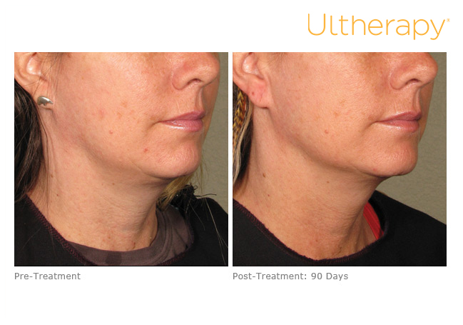 ultherapy-0039nkf_before-90daysafter_lower