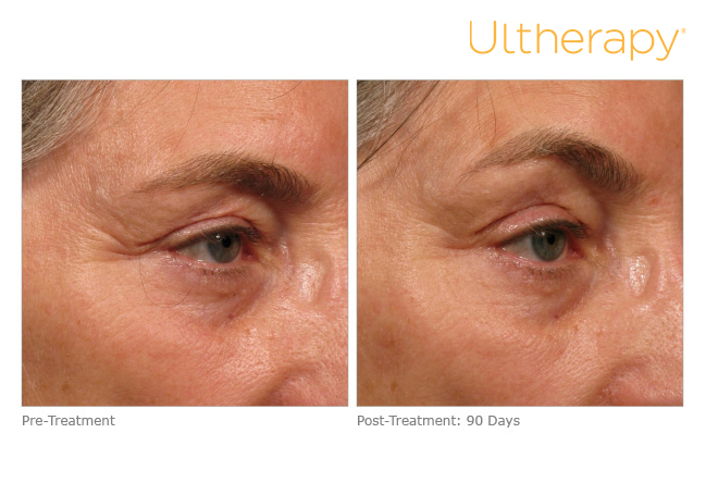 ultherapy-005a-018y_before-90daysafter_brow