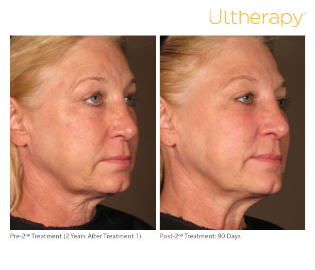 ultherapy-0108c-d_2yrposttx1before-90daysaftertx2_full
