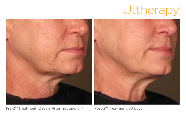 ultherapy-0108c-d_2yrposttx1before-90daysaftertx2_lower