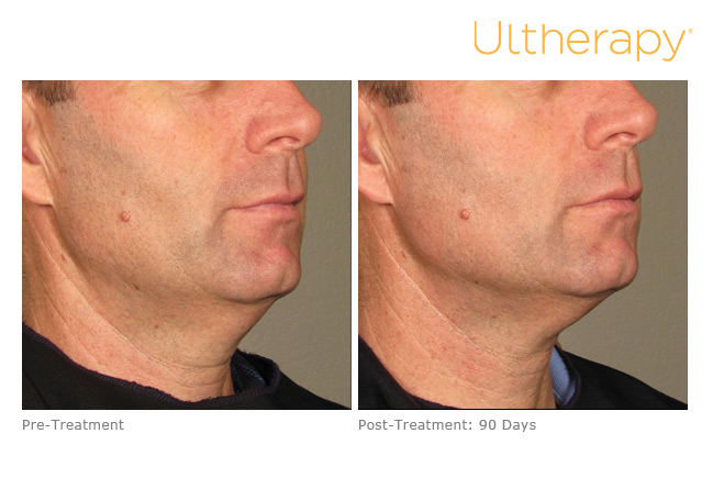 ultherapy-0109-003_before-90daysafter_lower