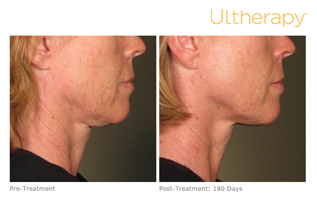 ultherapy-0120aem_before-180daysafter_lower