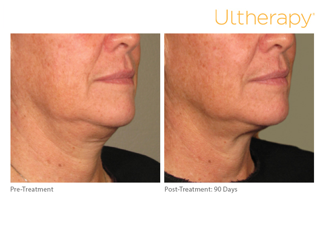 Ultherapy before and after photo