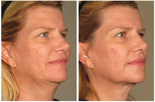 ultherapy-before-and-after-photos