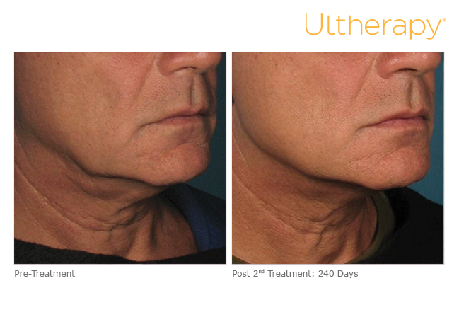 ultherapy-m01_before-240daysafter2tx_lower