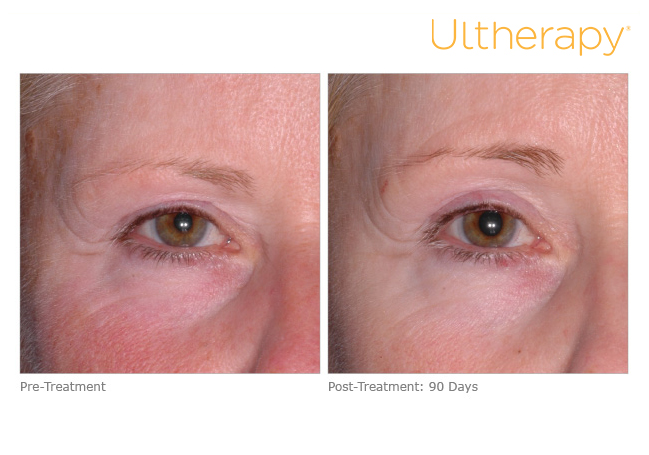 ultherapy-mrn22_before-90daysafter_brow
