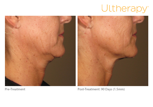 ultherapy15mm-0297j-k_before-90daysafter_lower-1_low-re