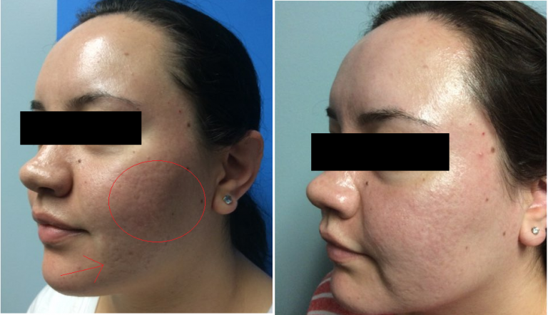 TCA Cross chemical peels before and after on woman