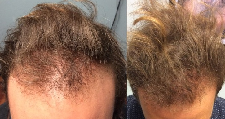 Stem cell for hair loss before and after