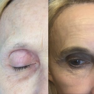 Stem cells for eyebrows before and after on woman