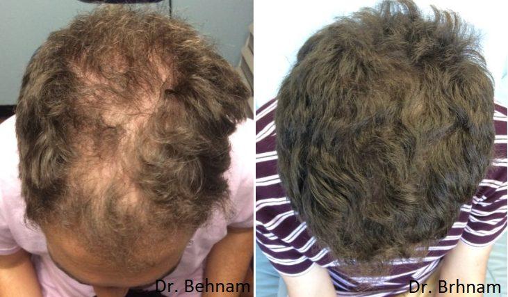 Topical Finasteride Dr Ben Behnam Md Faad Best