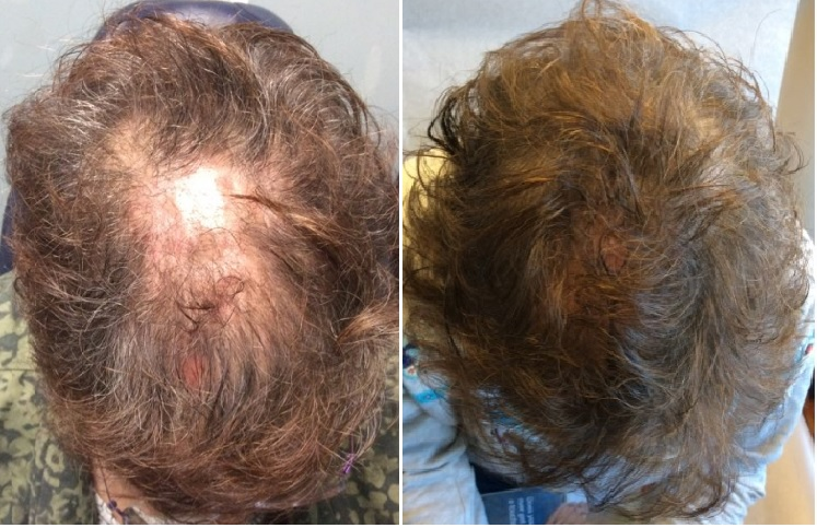 Topical Finasteride Buy How Does It Work