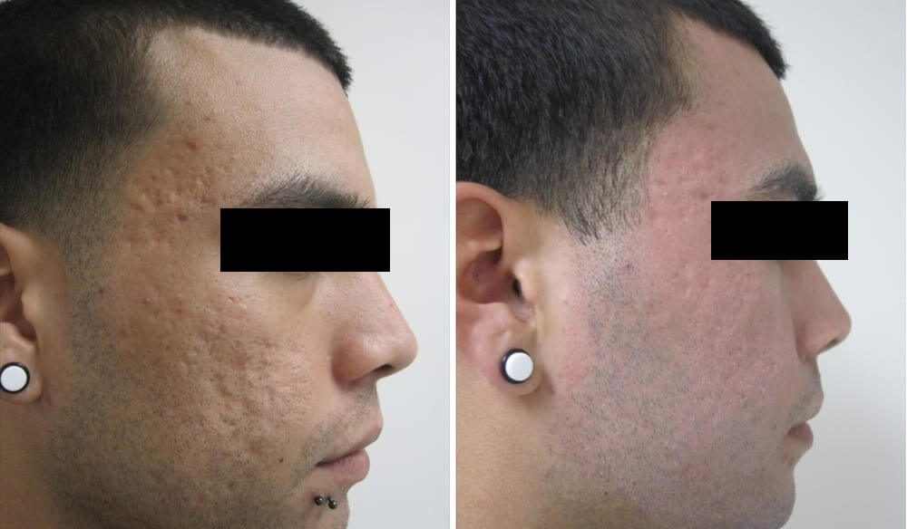Before and after of acne scars on male