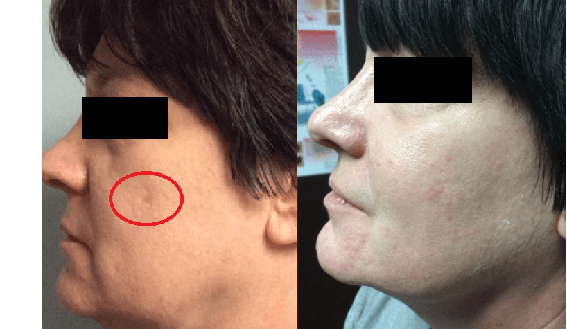 Before and after of acne scars on woman