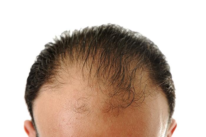 Hair loss hair transplant
