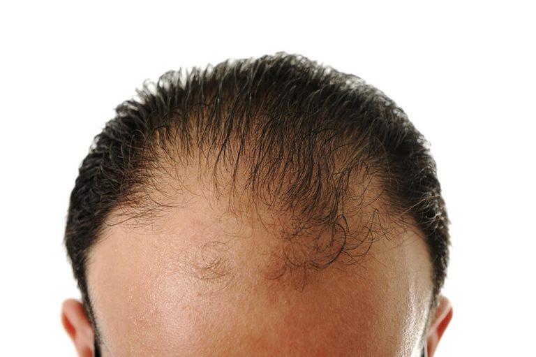 PRP hair treatment Los Angeles