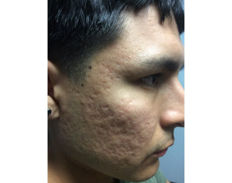 Man with acne scars on the right side of the face