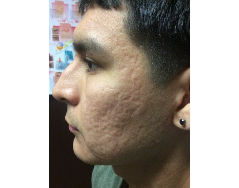 Man with acne scars on the left side of the face