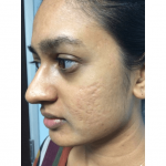 Woman with acne scars on the left side of the face