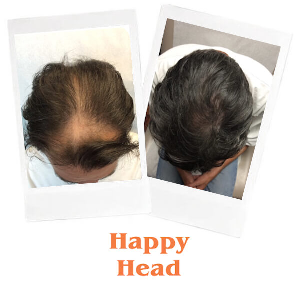 Topical Finasteride Dr Ben Behnam Md Faad Best Dermatologist Los Angeles