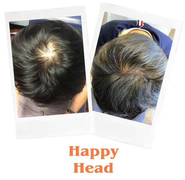 Topical finasteride Happy Head before and after
